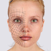 Parálisis facial periférica