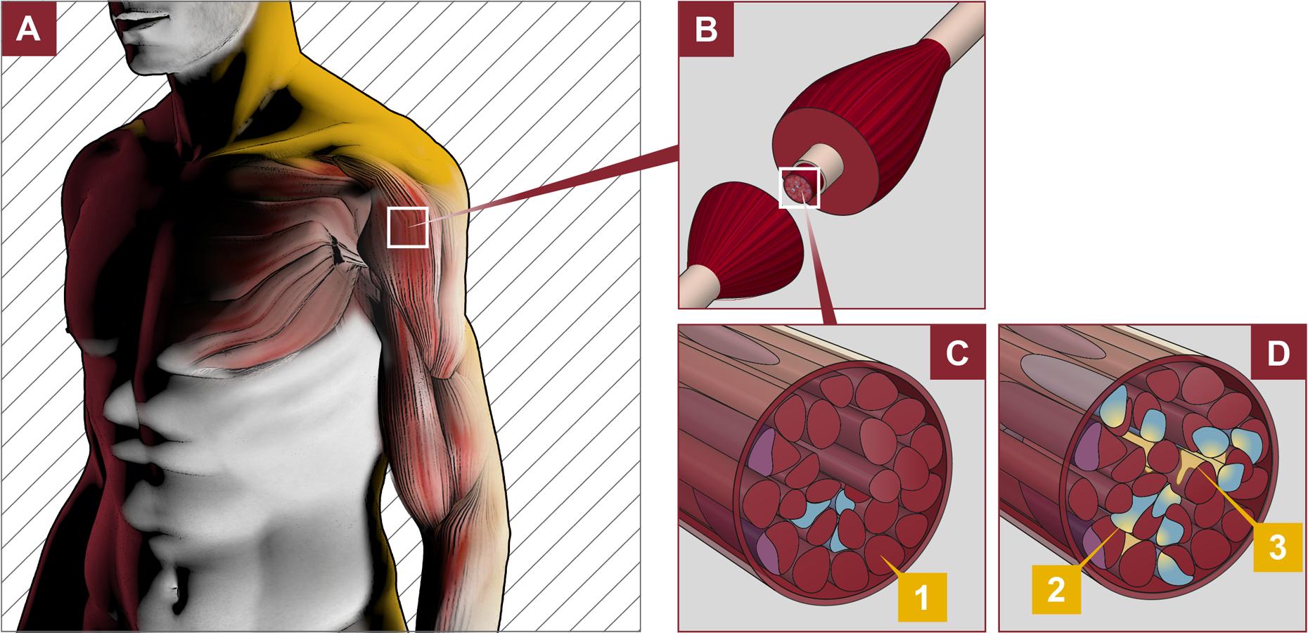 Si puede después de tratamiento pielonefrita a veces estar enfermo los riñones